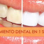 blanqueamiento-dental