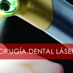 cirugia-dental-laser