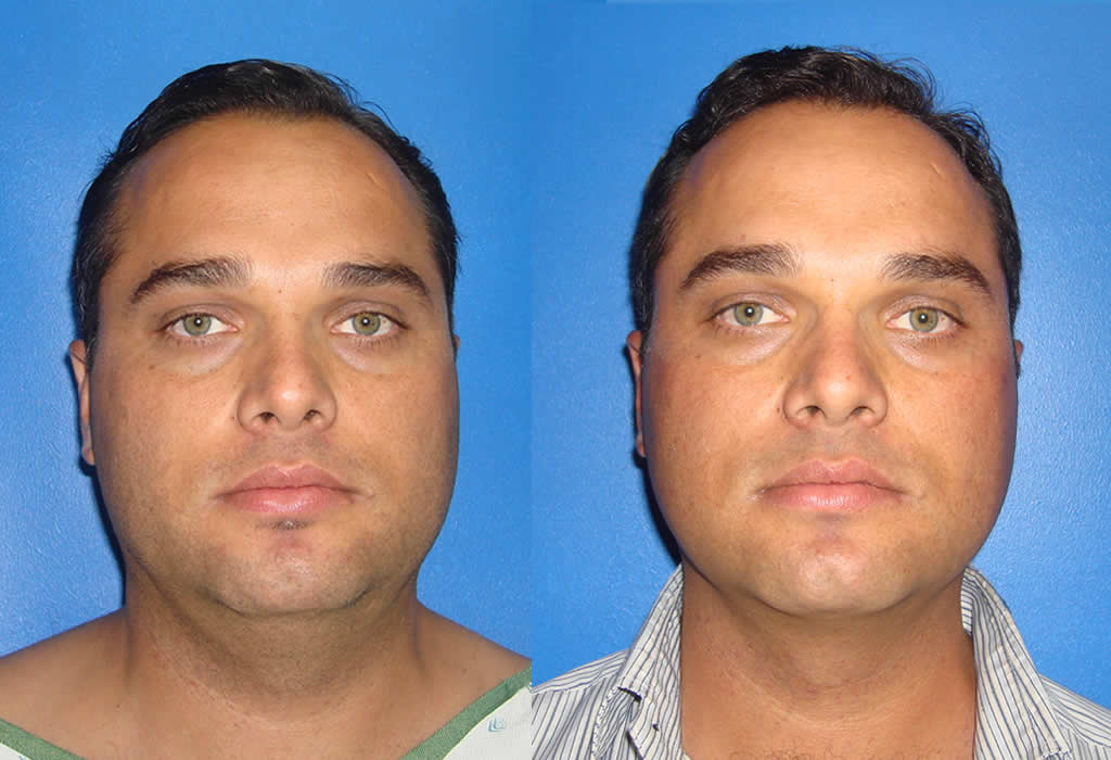chin-liposuction-1